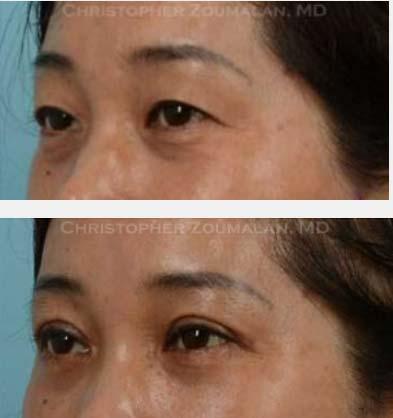 Asian-Eyelid-7
