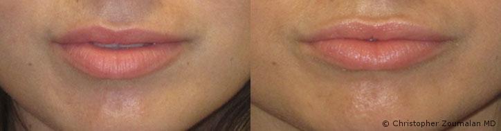 zoumalan-asymetric-upper-lips