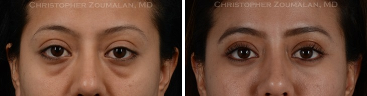 before after picture of a female eyelid surgery patient