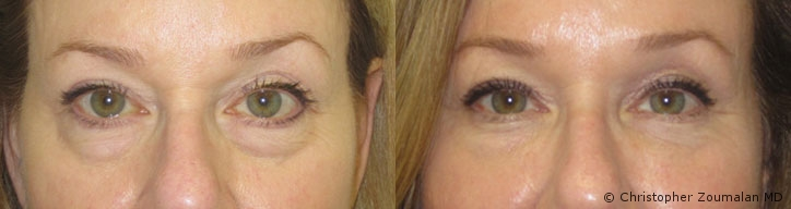 before after picture of a female patient having dark circles under eye