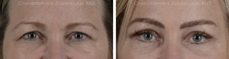 before after picture of a female blepharoplasty patient with droopy eyelids