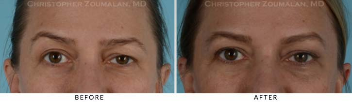 Facial Nerve Paralysis (Bell's Palsy) Before & After Photo - Patient Seeing Straight - Patient 1A
