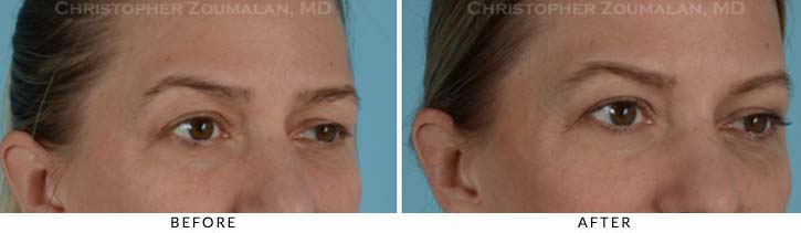 Facial Nerve Paralysis (Bell's Palsy) Before & After Photo - Patient Seeing Side - Patient 1D