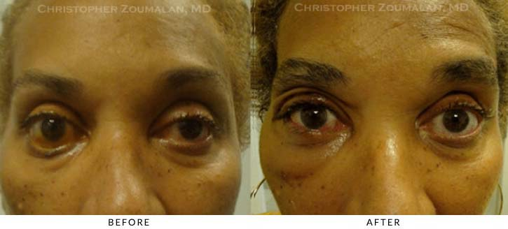 Facial Nerve Paralysis (Bell's Palsy) Before & After Photo - Patient Seeing Straight - Patient 3