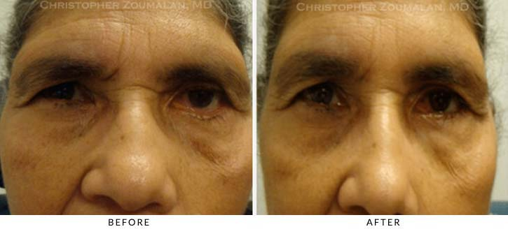 Facial Nerve Paralysis (Bell's Palsy) Before & After Photo - Patient Seeing Straight - Patient 2
