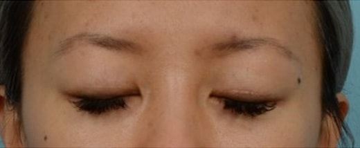 How do Eyelid Scars Heal 6