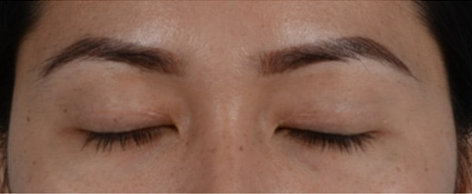 How do Eyelid Scars Heal 5