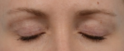 How do Eyelid Scars Heal Before & After Photo - Upper Eyelid Blepharoplasty & Quad Blepharoplasty - Patient 4
