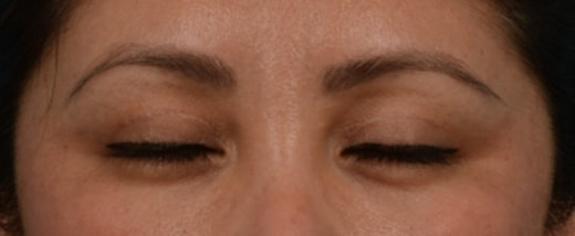 How do Eyelid Scars Heal 3