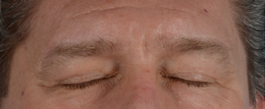 How do Eyelid Scars Heal 2