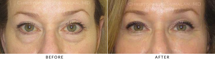Hyaluronic acid fillers to the orbital rim (tear trough) and midface. In this patient, Restylane was used below the eyelid bags.