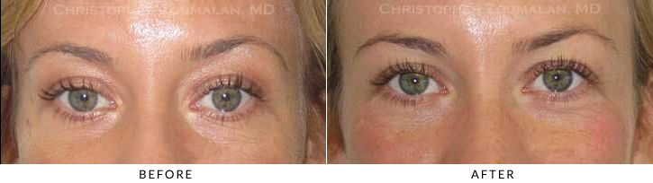 Hyaluronic acid fillers were injected along her eyelid/cheek area to improve her volume loss and restore a more refreshed look.