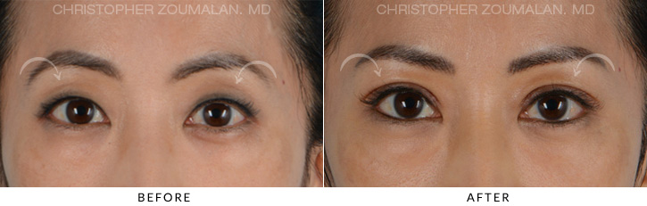 Asian Eyelid Blepharoplasty 1