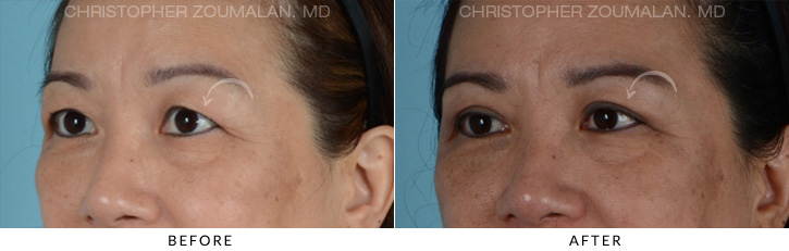 Asian Eyelid Blepharoplasty 2