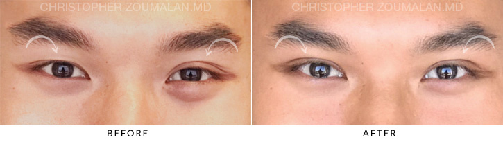 Asian Eyelid Blepharoplasty 3