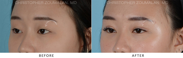 Asian Eyelid Blepharoplasty 4