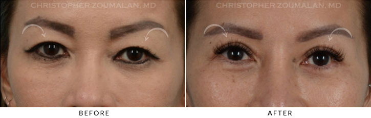Asian Eyelid Blepharoplasty 5