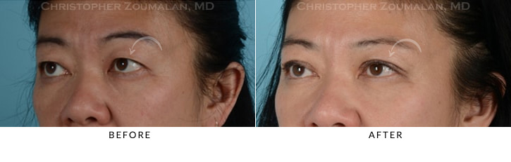Asian Eyelid Blepharoplasty 6