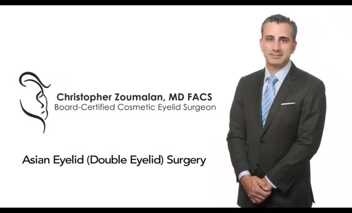 Asian Eyelid Surgery Video