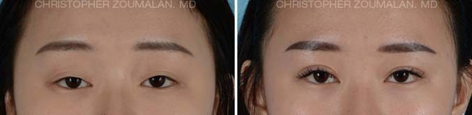Lower lid blepharoplasty Front View