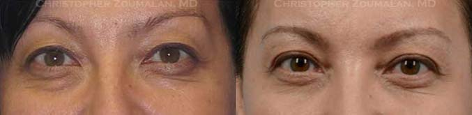 Excess skin in upper and lower eyelids