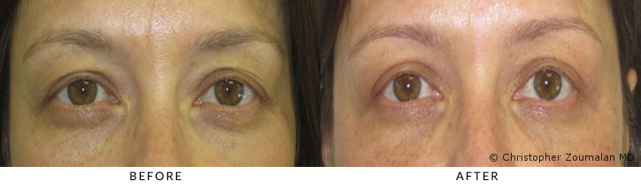 Bilateral upper lid ptosis repair, upper and lower lid blepharoplasty, periorbital and lower lid fat grafting. - Patient before and after picture