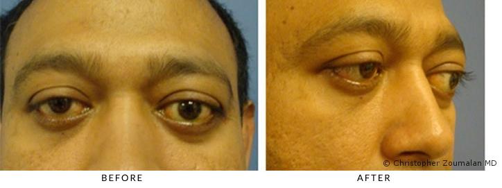 Bilateral thyroid eye disease resulting in proptosis