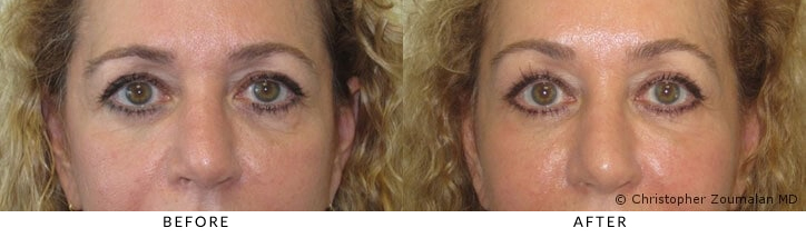 Bilateral upper brow ptosis
