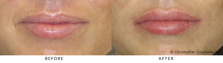 Hyaluronic acid (HA) fillers were used to augment the upper lip to allow for a more natural and youthful look - Female patient before and after picture.