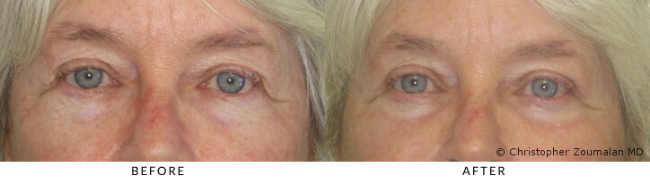 Bilateral upper and lower lid aging changes.