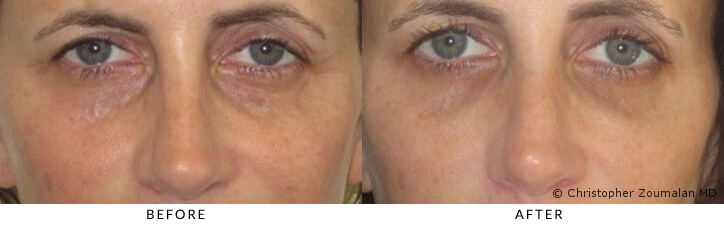Hyaluronic acid (HA) fillers to orbital rim (tear trough) and midface - Patient before and after picture.