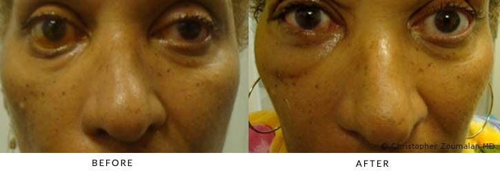 Placement of gold weight in right upper eyelid, lower lid resuspension using canthoplasty and hard palate tissue graft to lower lid, and midface resuspension - female patient before and after picture