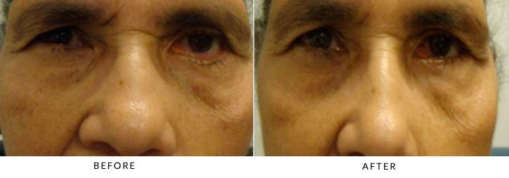 Left lower lid reconstruction using canthoplasty and tissue graft to lower lid as a posterior spacer - female patient before and after picture