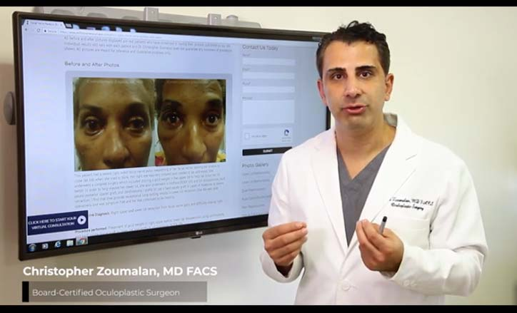 Facial Paralysis Bell's Palsy Video