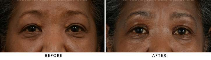 Benign Eyelid Lesions Front View