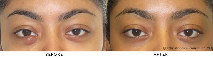 Right lower lid chalazion