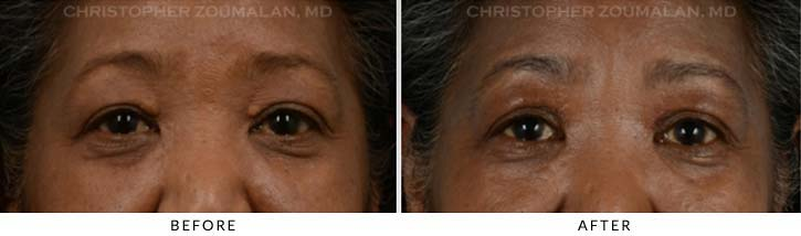 Benign Eyelid Lesions Before & After Photo - Patient Seeing Straight - Patient 1A