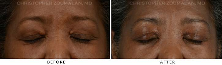 Benign Eyelid Lesions Before & After Photo - Patient close eyes - Patient 1B