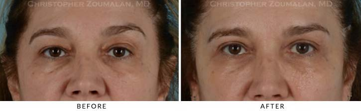 Benign Eyelid Lesions Before & After Photo - Patient Seeing Straight - Patient 2