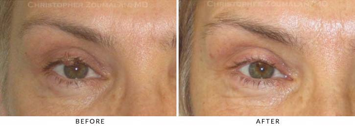 Benign Eyelid Lesions Before & After Photo - Patient Seeing Straight - Patient 3