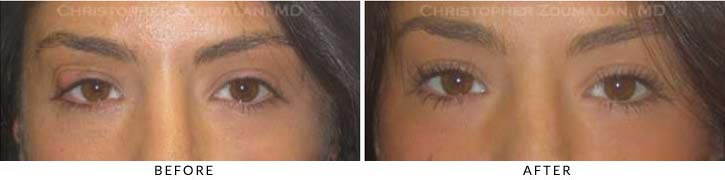 Benign Eyelid Lesions Before & After Photo - Patient Seeing Straight - Patient 4