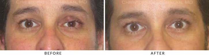 Benign Eyelid Lesions Before & After Photo - Patient Seeing Straight - Patient 5