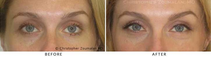 Benign Eyelid Lesions Before & After Photo - Patient Seeing Straight - Patient 6