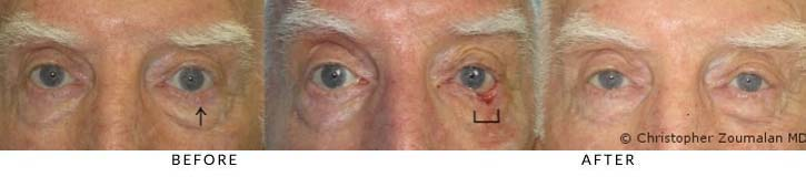 Left lower lid basal cell carcinoma