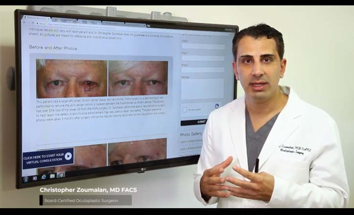 Eyelid Skin Cancer Video