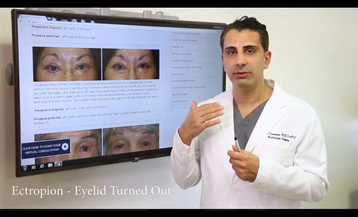 Eyelid malpositions Video