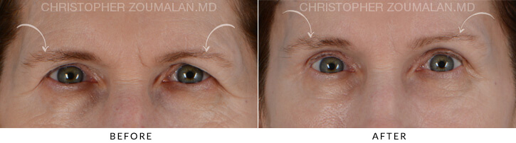 Endoscopic Brow Lift Before & After Photo - Patient Seeing Straight - Patient 1A
