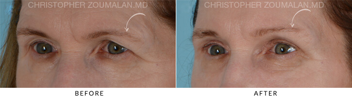 Endoscopic Brow Lift Before & After Photo - Patient Seeing Side - Patient 1B
