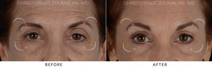 Endoscopic Brow Lift Before & After Photo - Patient Seeing Straight - Patient 2A
