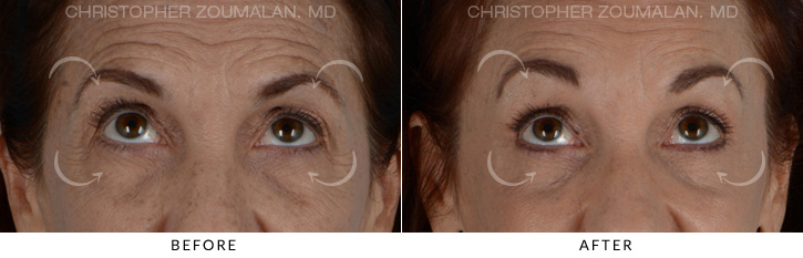 Endoscopic Brow Lift Before & After Photo - Patient Seeing Up - Patient 2B